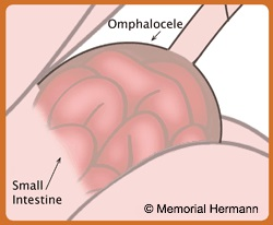 Fetal Omphalocele Intestine Illustration